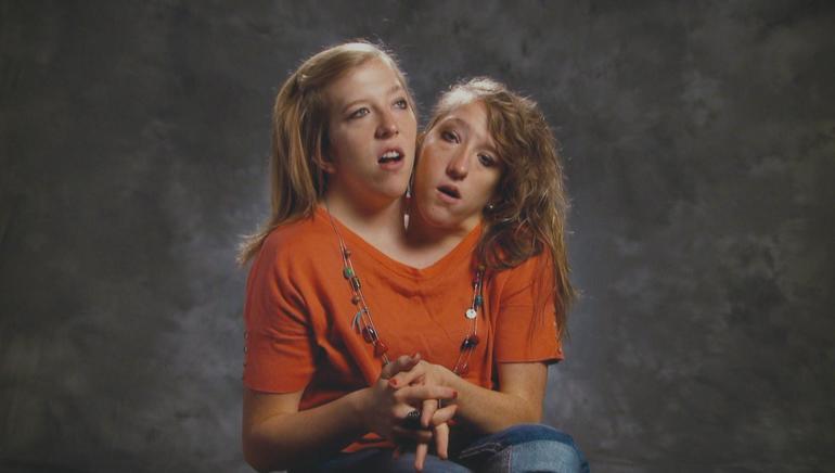 Extraordinary Twins